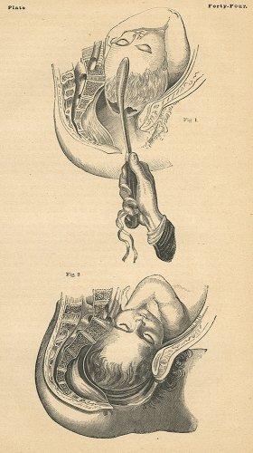 医学の図版/ドイツ・1900年頃