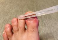 爪の下が黒くて痛い。爪下血腫(そうかけっしゅ)の治し方