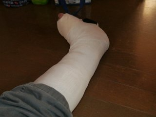 2013年 え?、ちょっと怪我しました。