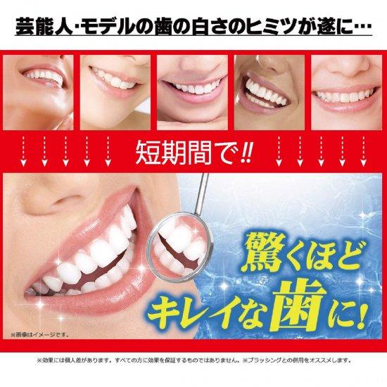 歯を白くするsu・po・n・ji+ハミガキトリートメントje・luの写真