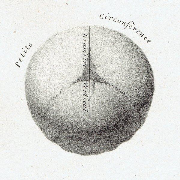 解剖学 胎児の頭蓋骨 リトグラフ フランスアンティークプリント  0002