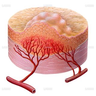 血管形成4(/5)(がんと血液供給)(Sサイズ)