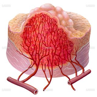 血管形成5(/5)(がんと血液供給)(Sサイズ)
