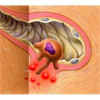 毛細血管のがん(Sサイズ)