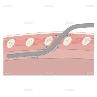 胸腔ドレナージ/皮下気腫 (Sサイズ)