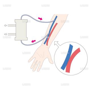 血液透析のしくみ (Sサイズ)