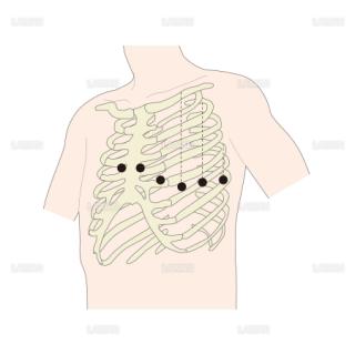 電極位置(単極胸部誘導) (Sサイズ)