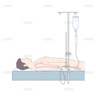 中心静脈圧(CVP)測定法 (Sサイズ)