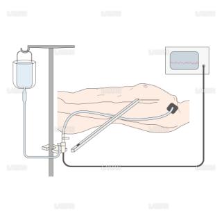 トランスジューサーによる測定方法 (Sサイズ)