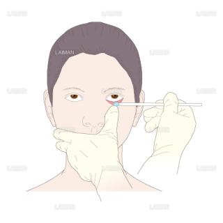 眼軟膏の塗布(Sサイズ)