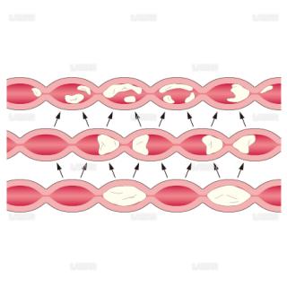 消化管の分節運動(Sサイズ)