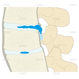 ヘルニアの脱出程度による病態分類 遊離脱出型(Sサイズ)
