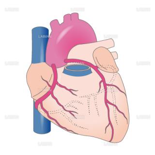 冠動脈 (Sサイズ)