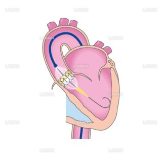 TAVIの治療の流れ2(経大腿動脈アプローチ)(Mサイズ)