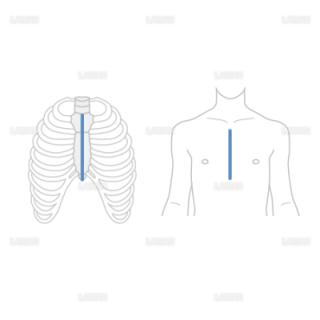 胸骨正中切開(Sサイズ)