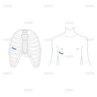 低侵襲心臓手術(MICS)の切開1(Sサイズ)
