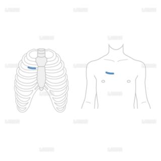 低侵襲心臓手術(MICS)の切開2(Sサイズ)