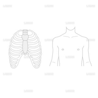 低侵襲心臓手術(MICS)_白地図(Sサイズ)
