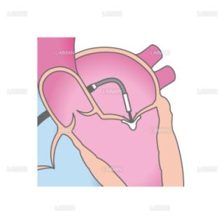 経皮的僧帽弁接合不全修復術(MitraClip)_治療方法1(Sサイズ)