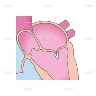 経皮的僧帽弁接合不全修復術(MitraClip)_治療方法2(Sサイズ)
