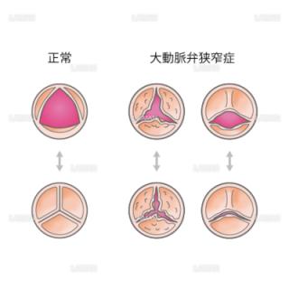 大動脈弁の状態の比較(Sサイズ)