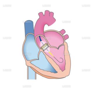 経カテーテル大動脈弁植え込み術(TAVI)(Sサイズ)