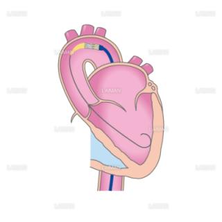 TAVIの治療の流れ1(経大腿動脈アプローチ)(Sサイズ)