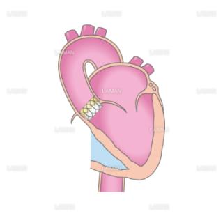 TAVIの治療の流れ3(経大腿動脈アプローチ)(Sサイズ)
